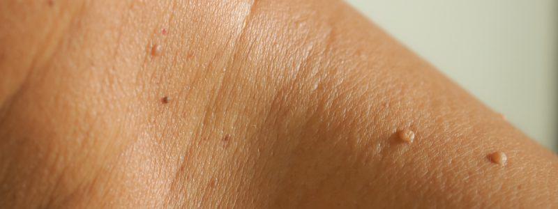 verwijderen-van-fibromen-steelwratjes-of-courpose-behandeling-2